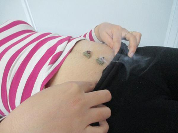 Tai biến xảy ra khi sử dụng châm cứu vô sinh là gì?